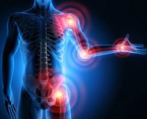 Arthrose, die häufigsten Formen der Gelenkerkrankungen