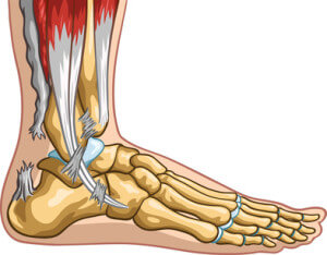 Achillessehnenriss (Achillessehnenruptur)