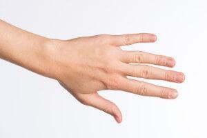 Fingerendgelenksarthrose (Bouchard-Arthrose)