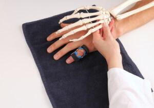 Fingergelenksarthrose-Polyarthrose