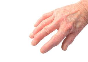 Fingermittelgelenksarthrose (Bouchard-Arthrose)