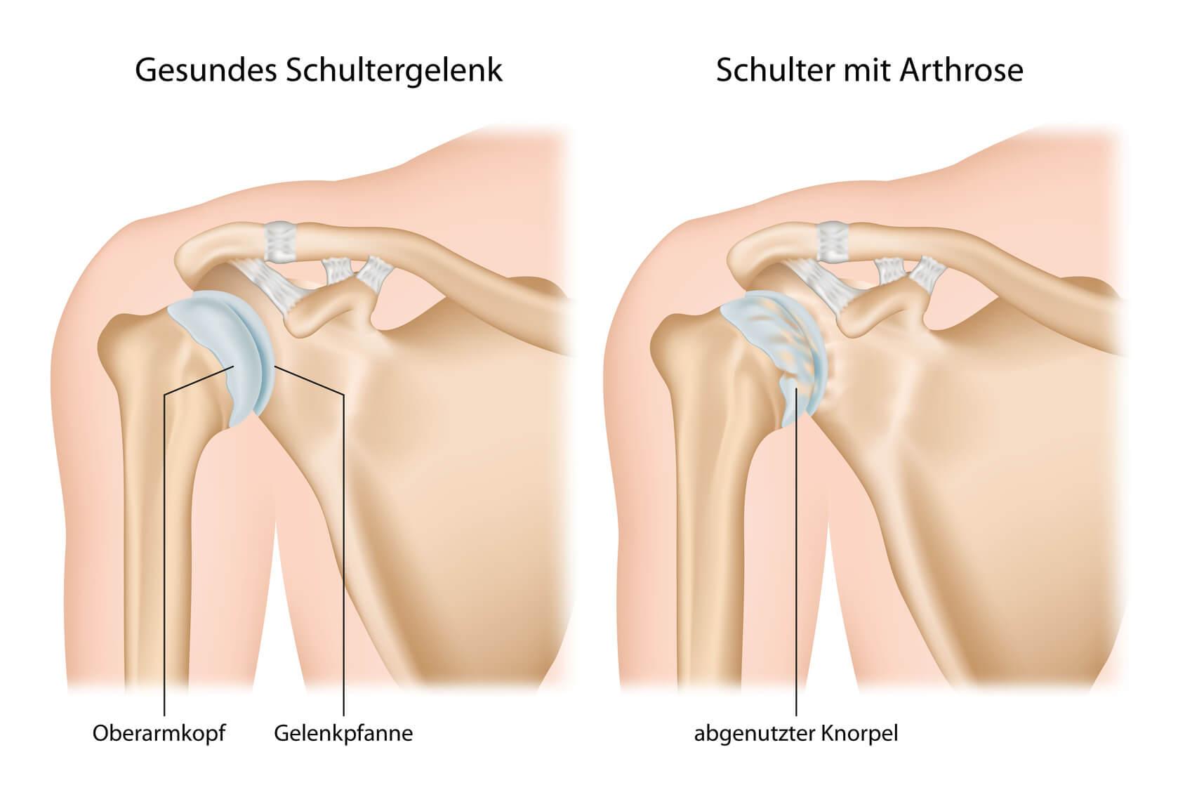 Schulter Arthrose (Omarthrose)