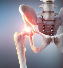 Arthrose der Hüfte (Koxarthrose) - Behandlung / Therapie