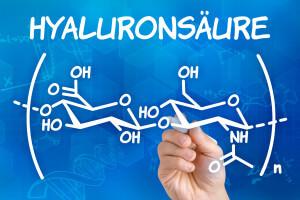 Kniearthrose Therapie mit Hyaluronsäure