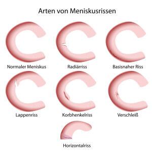 Meniskusriss – Senkung des Arthroserisikos